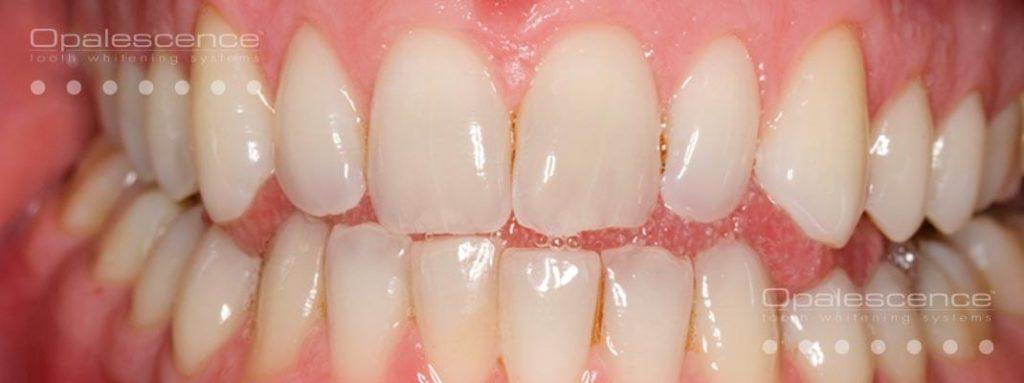 Teeth Whitening Kathmandu Nepal Shangrila Dental Clinic