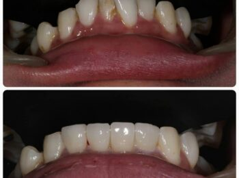 Teeth alignment without Braces